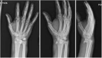 Volar Dislocation of the Lunate with 270 Degree Rotation