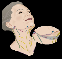 Cervico Facial Lifting - The reconstruction of CMAS ligament