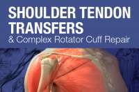 Mayo Clinic Course on Shoulder Tendon Transfers and Complex Rotator Cuff Re