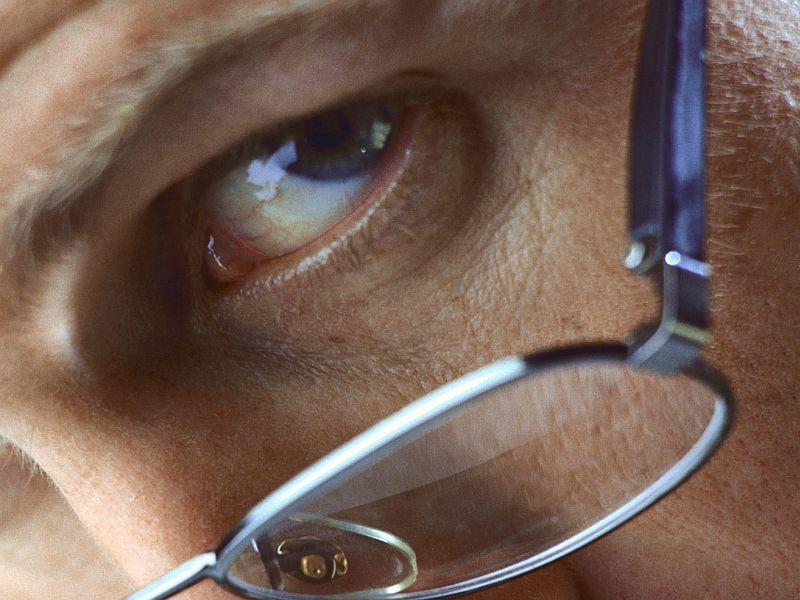 AAO: Stem Cell Retinal Pigment Epithelial Cells Safe in Dry AMD