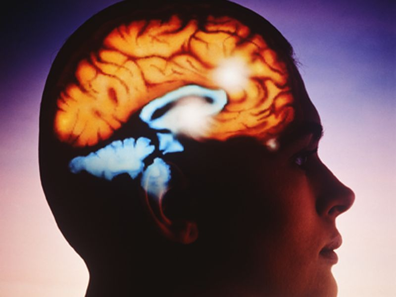 Less REM May Indicate Higher Dementia Risk in Seniors