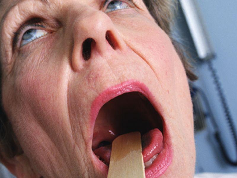 Swallowing Exercises Rehabilitate Chronic Dysphagia