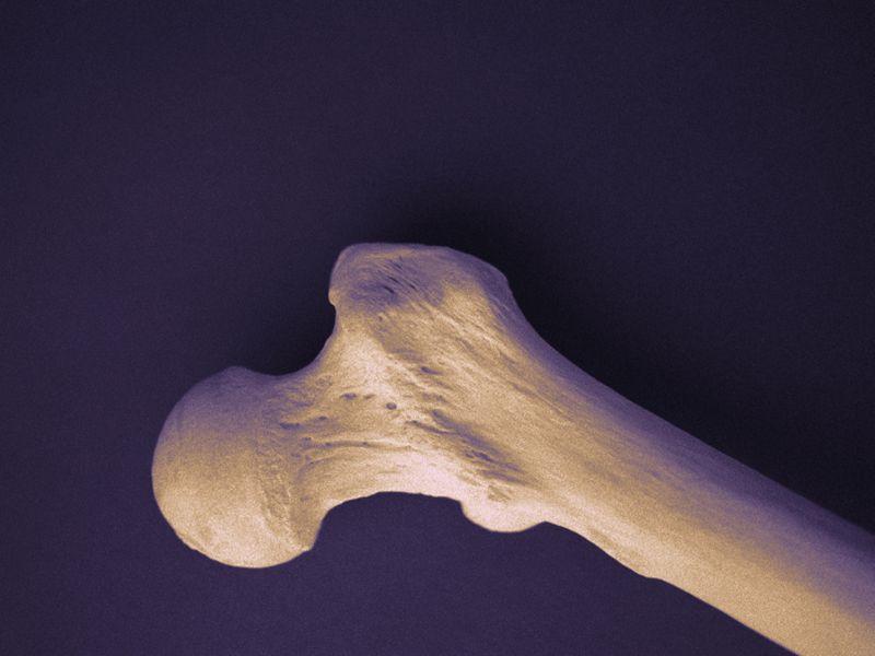 Bone Strength + Bone Mineral Density Screening Cost-Effective