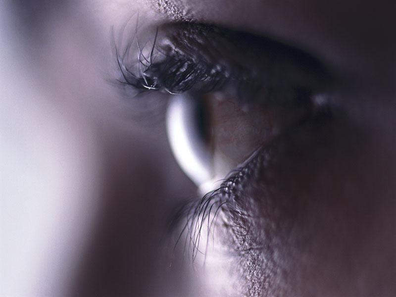Erlotinib Overdose Tied to Conjunctivitis