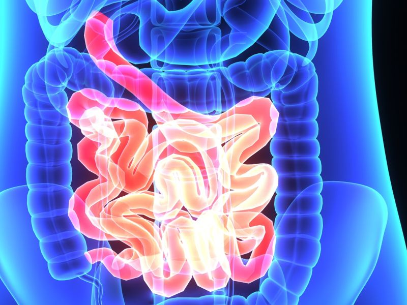 Colorectal Lesion Frequency Increases at Age 45