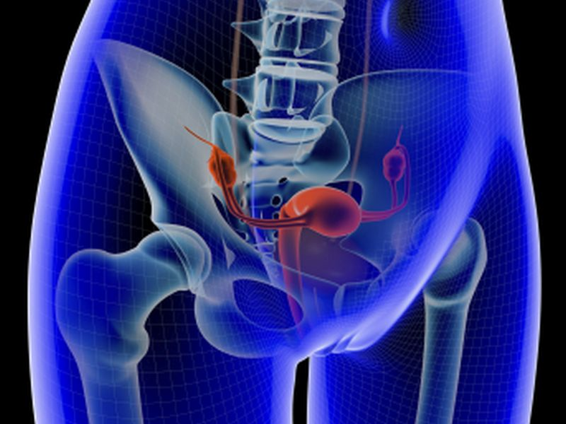 Higher Risk of In-Situ Breast CA, Ovarian Tumors With Fertility Tx