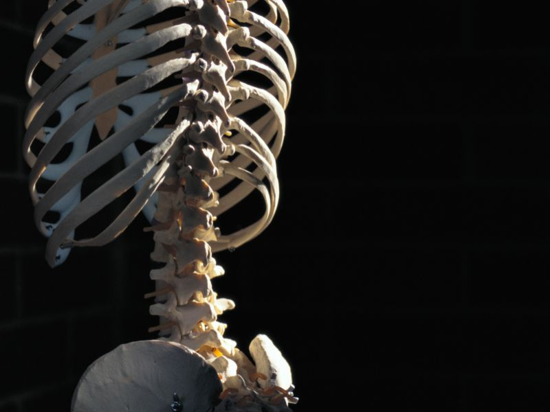Possible Link Found Between Poor Diet and Back Injuries