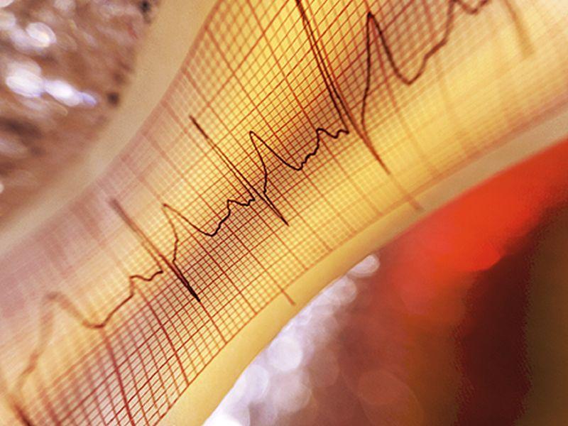 Diabetes Ups Risk of MACE in Acute Coronary Syndromes