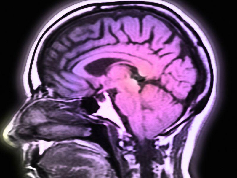 Decrease Over Time in Incidence of Strokes in Men