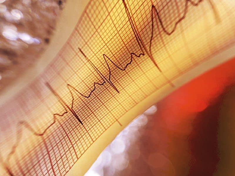 New Risk Score Promising for Predicting MI, Death