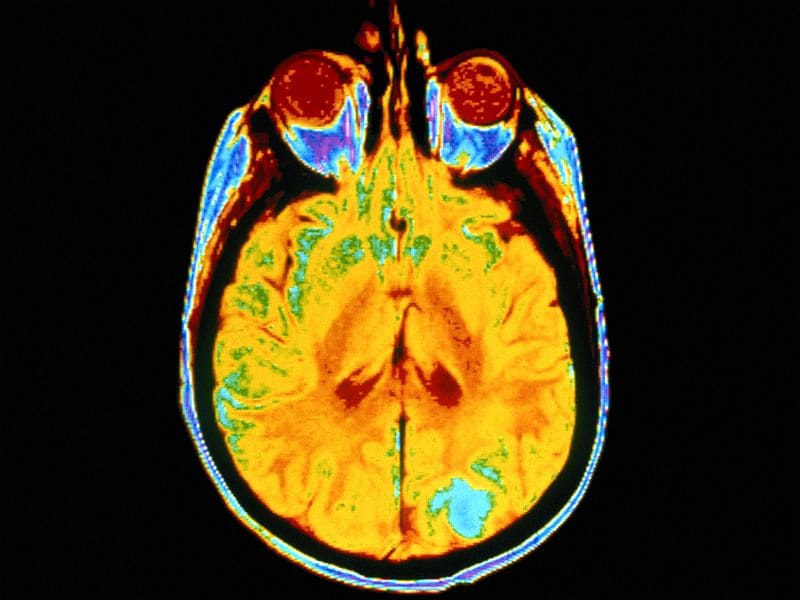 PET Imaging Can Measure Synaptic Loss From Alzheimer's