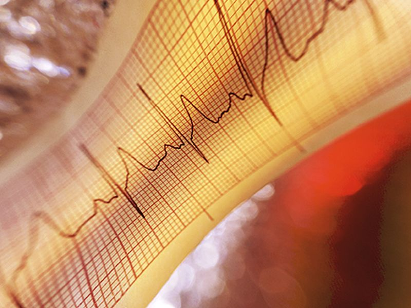 AICDs Effective for Symptoms, Lethal Arrhythmia in Brugada