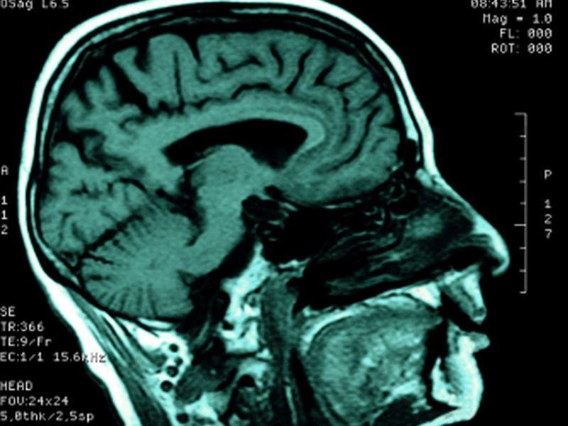 Cerebral Morphometric Changes Discriminate ADHD, Controls
