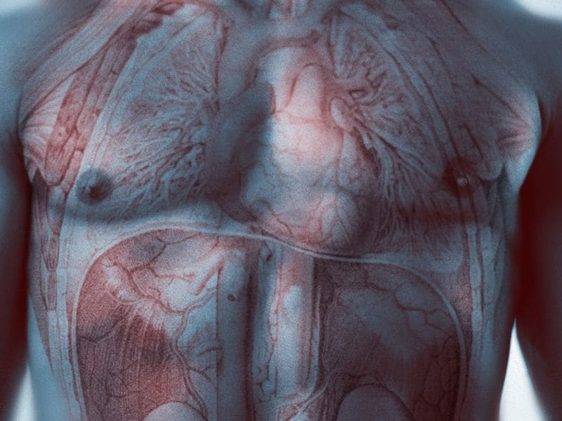 Excess Cardiac Risk Varies With Age of Onset of T1DM