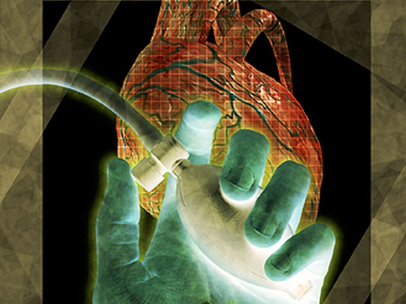 Center Surgical Volume Linked to LVAD Patient Outcomes