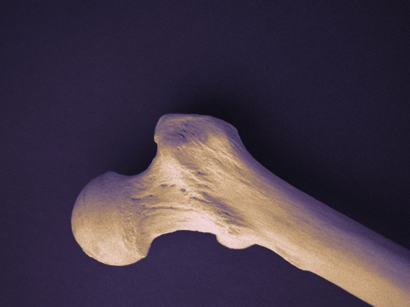 High Dietary Fiber Protects Against Femoral Neck Bone Loss