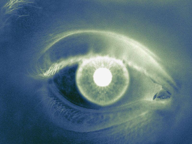 Study IDs Determinants of the Neuro-Retinal Rim Area