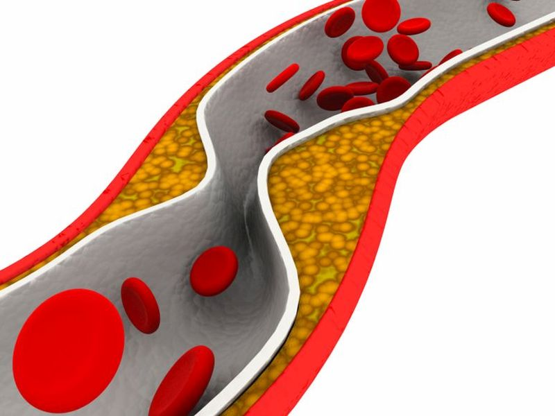 PPI Use Linked to Increased Risk of Ischemic Stroke, MI