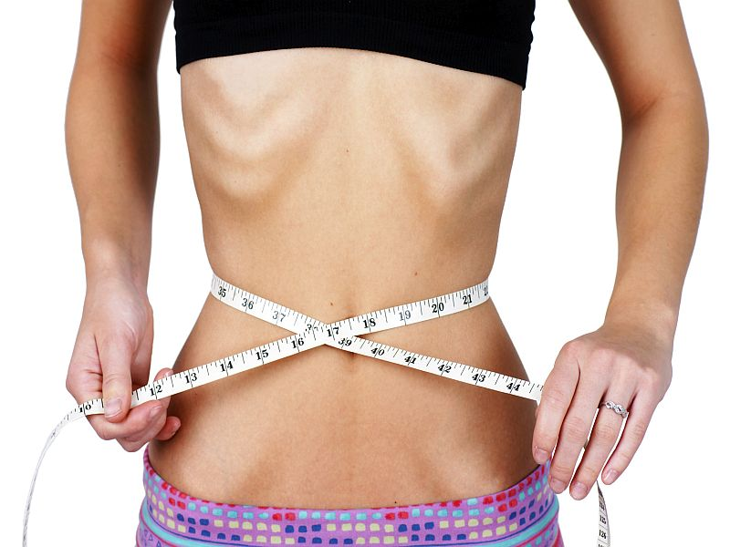 Poor Outcomes Common With Childhood Anorexia Nervosa