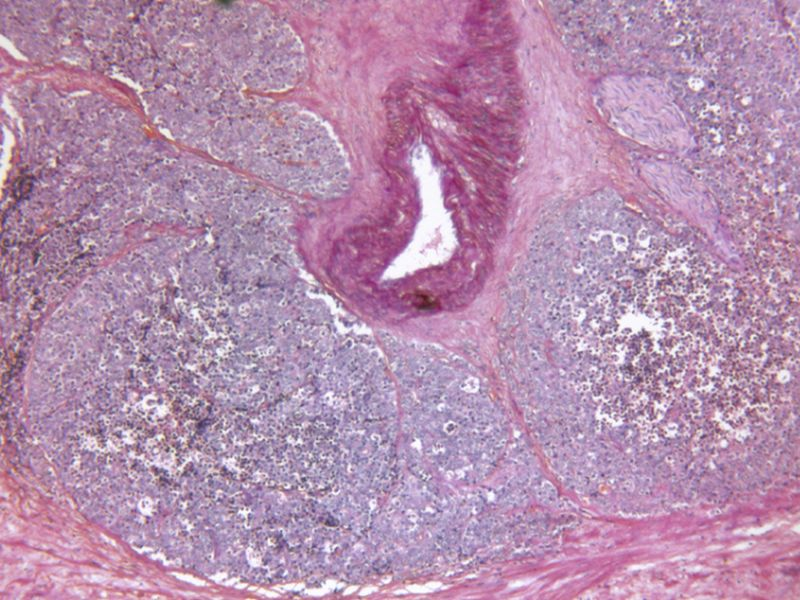 Hazard Score Can Estimate Age of Prostate Cancer Diagnosis