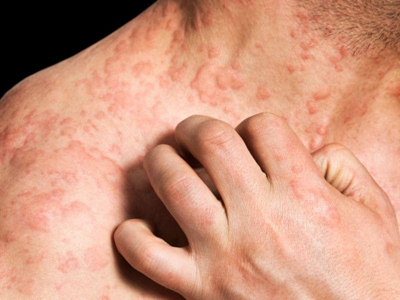 CRP Levels Potentially Useful in Chronic Spontaneous Urticaria