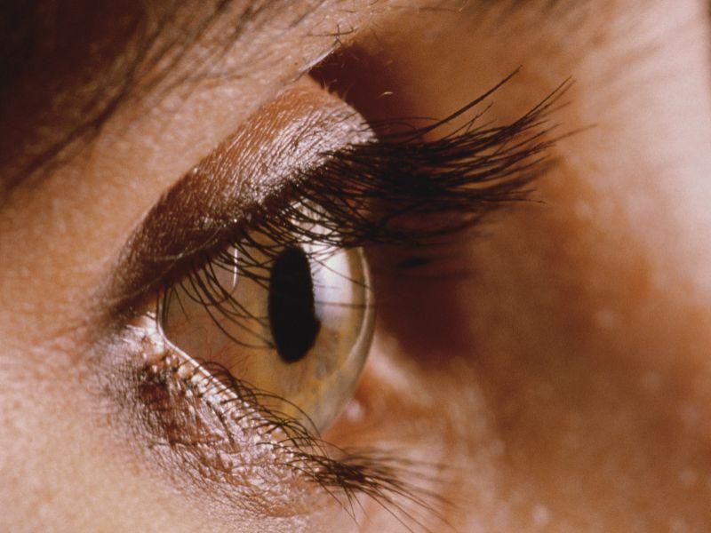 Good Cosmetic Outcomes for Super Pulse CO<sub>2</sub> Laser Therapy