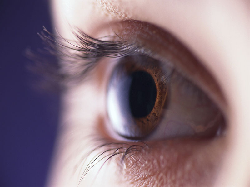 YAG Laser Vitreolysis Can Help Reduce Eye Floaters