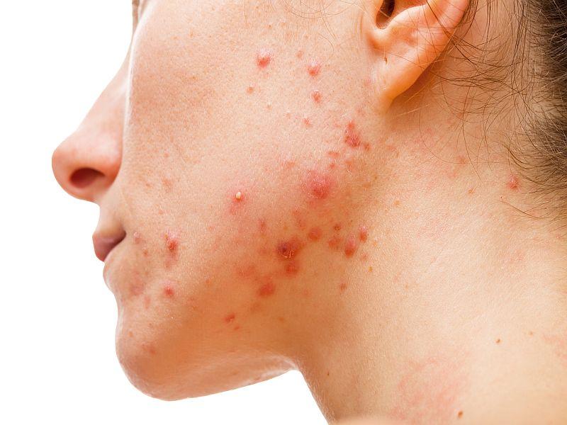 Acne Linked to Increased Risk of Major Depressive Disorder