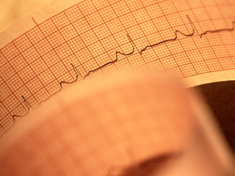 In A-Fib Patients, Stroke Risk Higher for Blacks Than Whites