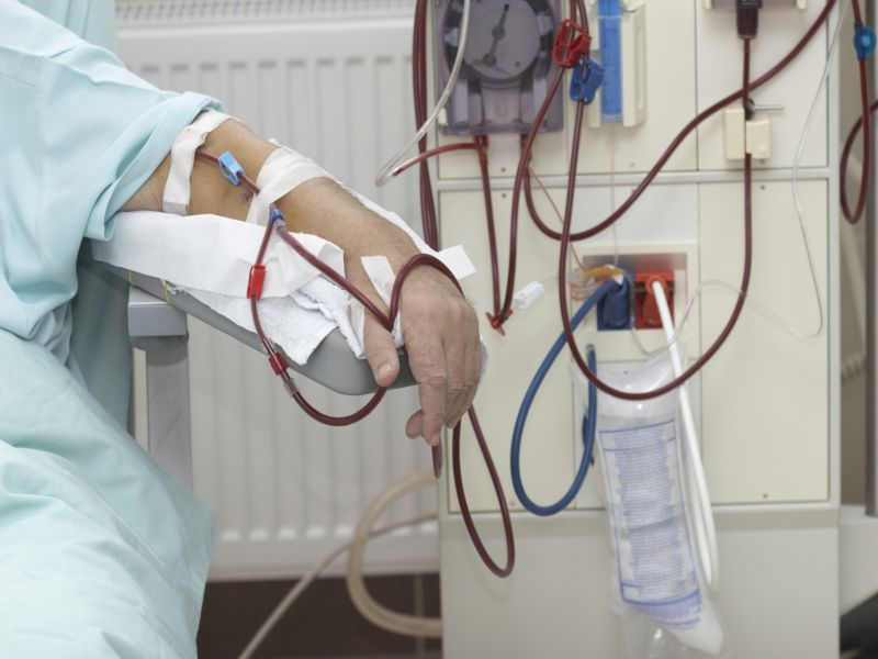End-Stage Renal Disease Patients' Readmission Rate High
