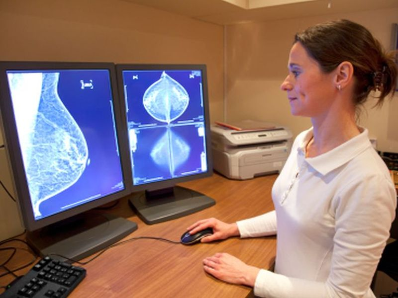 Higher Biopsy Rates for Women Undergoing Screening Breast MRI