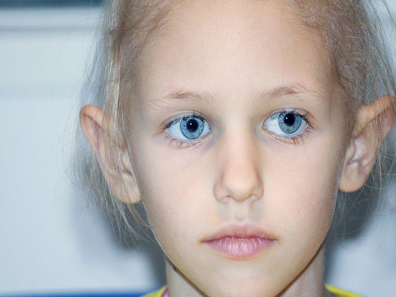 ASA: Botox Injections Beneficial for Migraine in Children