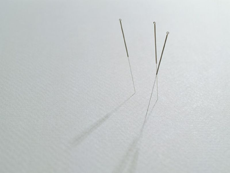 Electrotherapy, Acupuncture Ease Post Knee Arthroplasty Pain
