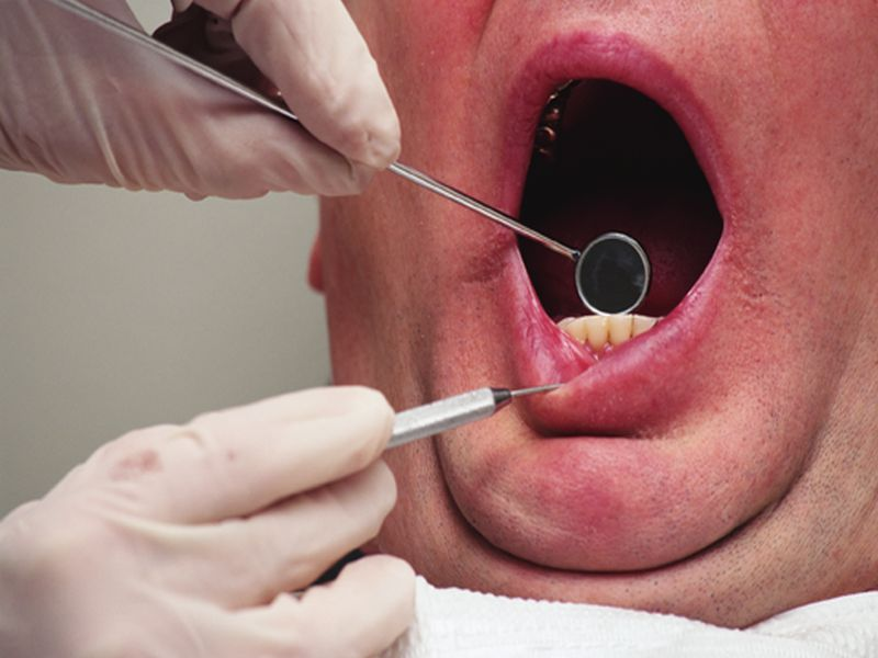Periodontitis in Older Adults Tied to Higher Total Cancer Risk