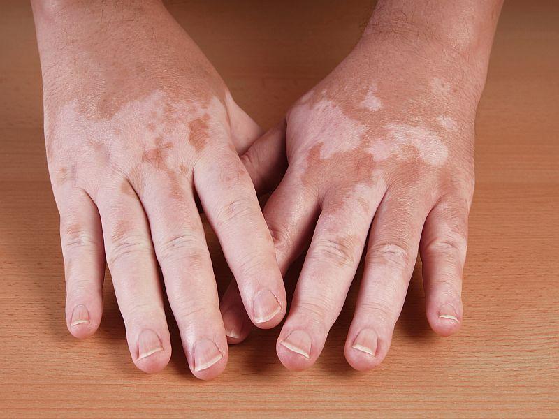CO<sub>2</sub> Laser + Platelet-Rich Plasma Promising Treatment for Vitiligo