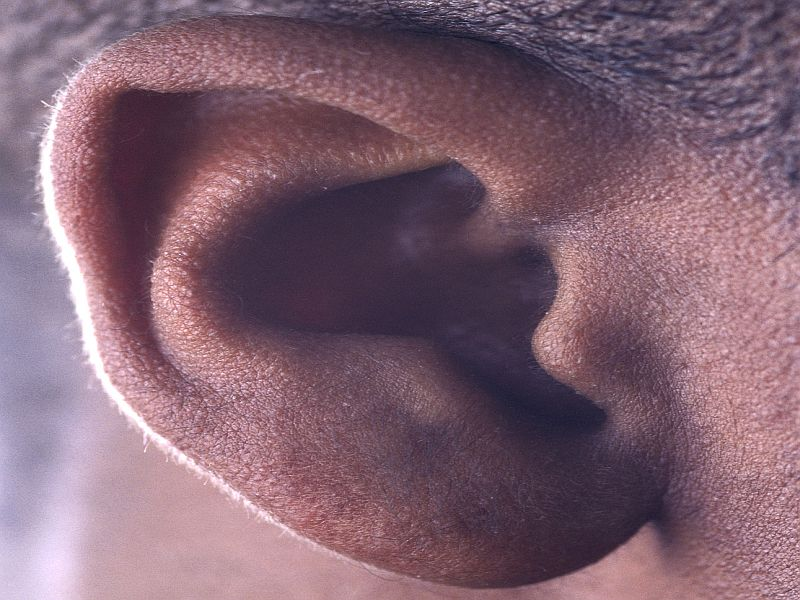Increased Dementia Risk With Hearing Loss in Older Adults