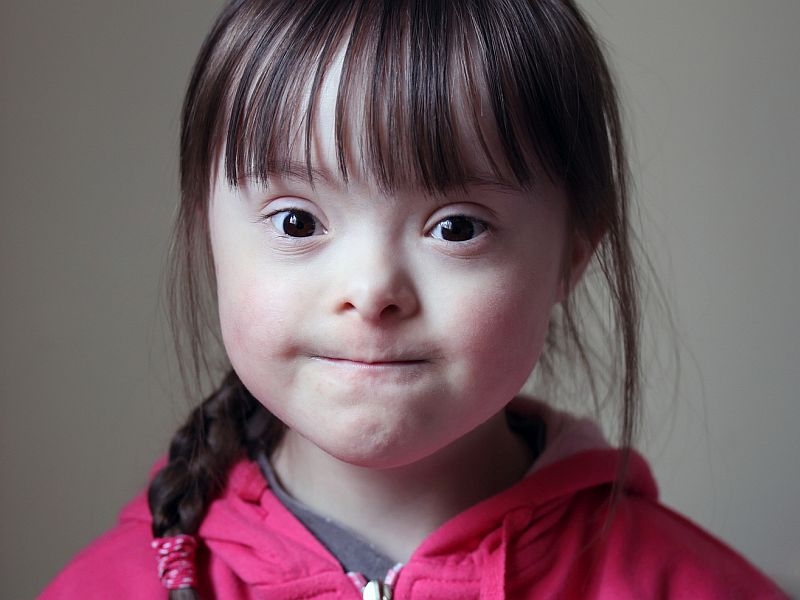 Corneal Abnormalities Seen With Down Syndrome