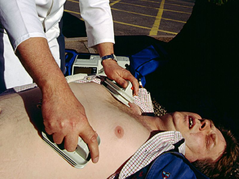 CPR Less Likely for Cardiac Arrests in Black Neighborhoods