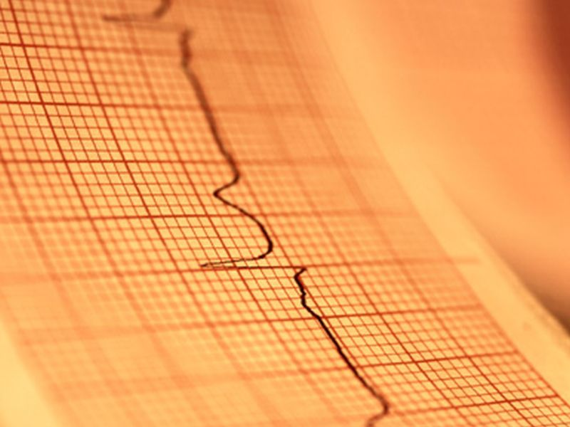 Lifetime Risk for Atrial Fibrillation Is One in Seven in Taiwan