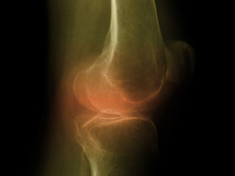 Hip Bone Mineral Density Tied to Knee Cartilage Defects