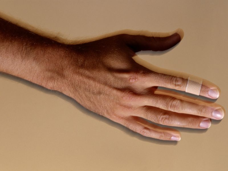 <i>Candida</i> Antigen Safe, Effective for Treating Common Warts
