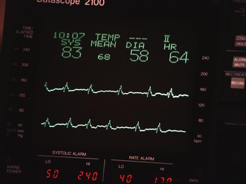 Novel hs-cTnT Protocol Better Rules Out Myocardial Infarction