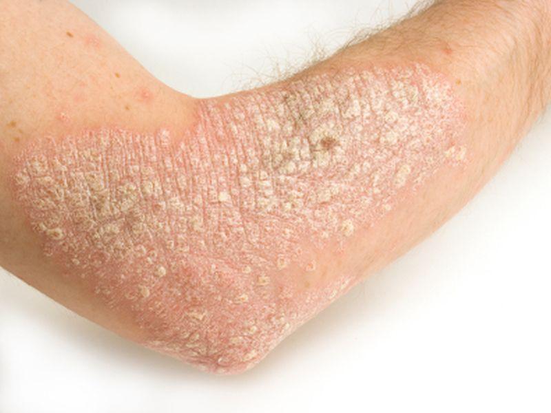 Psoriasis Remission Described After Hepatitis C Virus Treatment