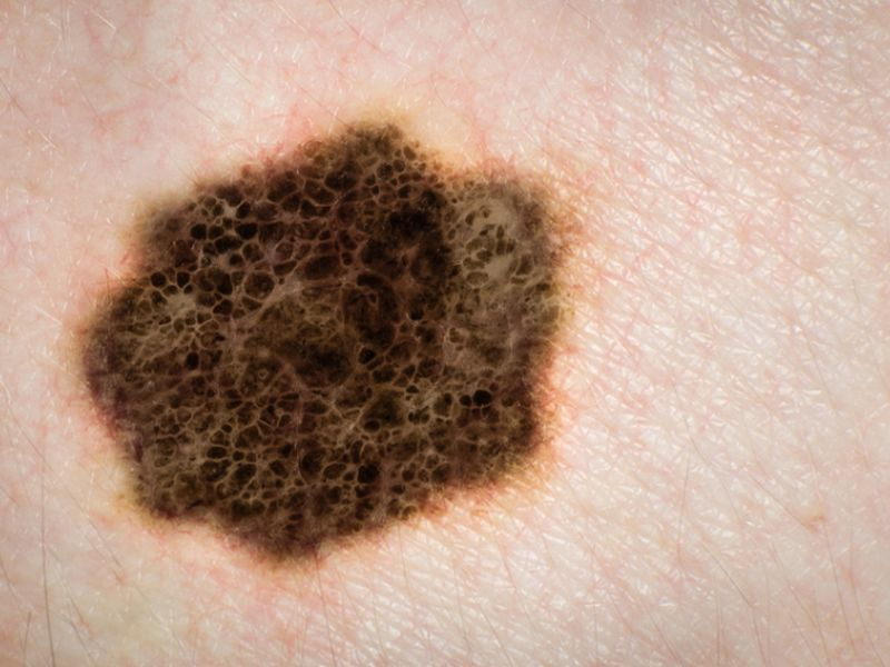 Propranolol Use Inversely Linked to Melanoma Recurrence