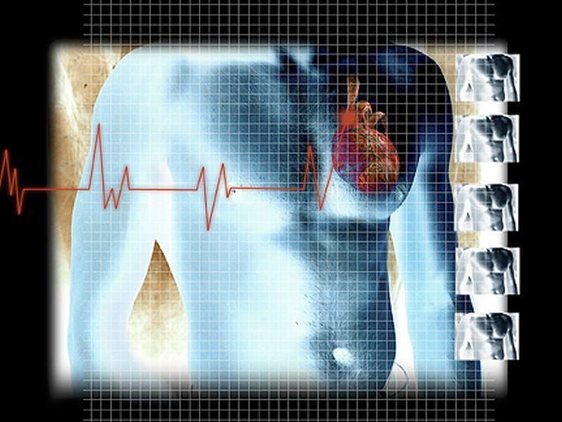 2D and 3D MRI Techniques Similar for Cardiac Measures