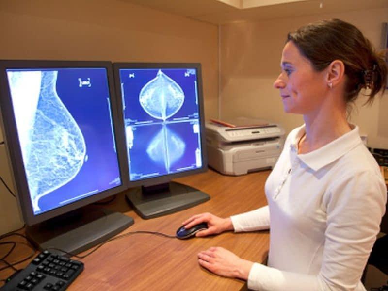 <i>TGFB1</i> Mutation Ups Radiation-Induced Breast Fibrosis Risk