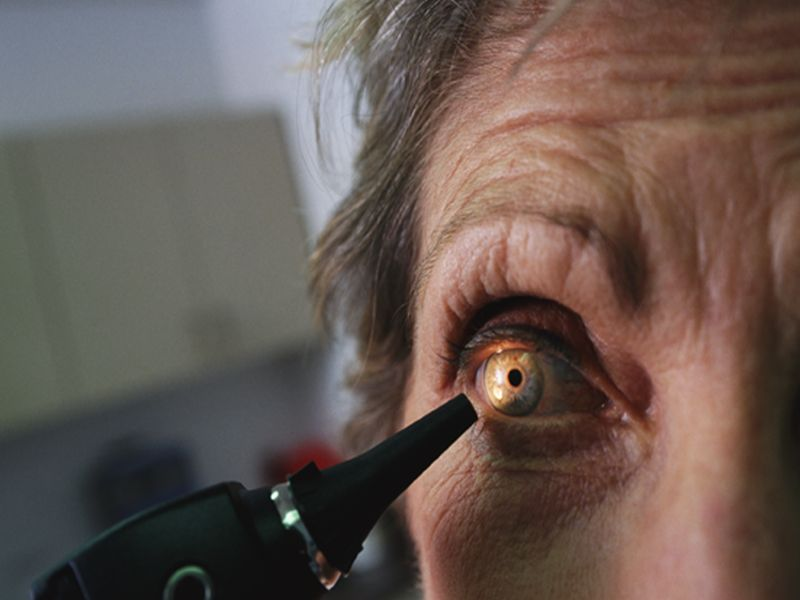 Decline in New Cases of Blindness in Germany