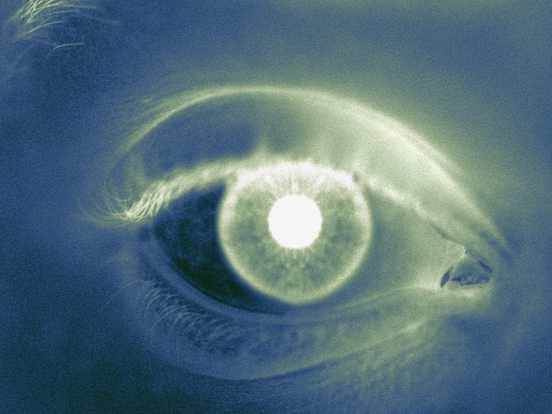 Doctors Remove Contact Lens Embedded in Eyelid for Years