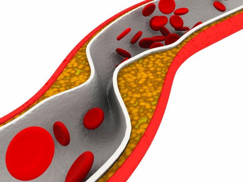 Coronary Artery Dz Extent Similar in Men, Women With T1DM