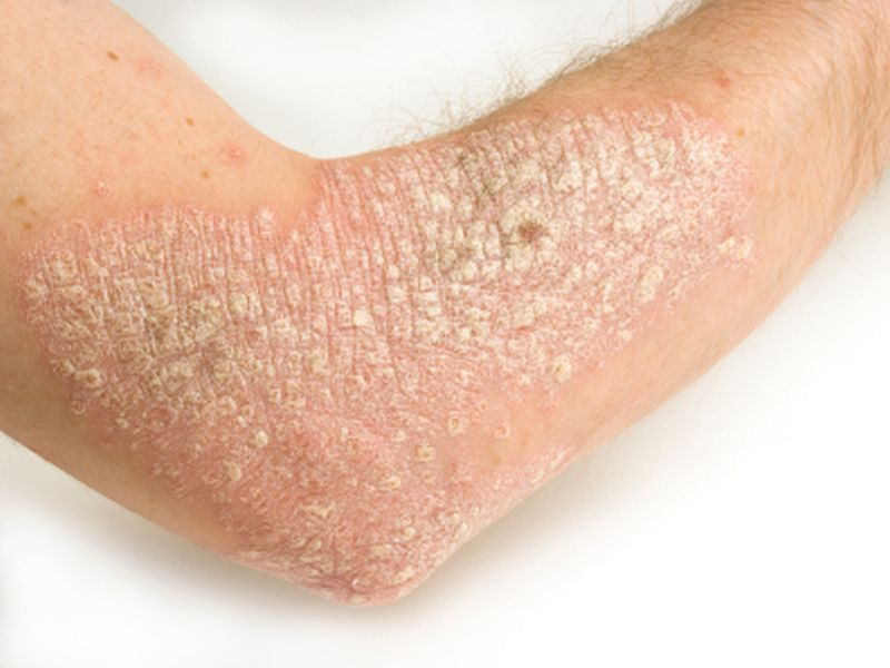 ABP 501, Adalimumab Biosimilar, Safe and Effective, for Psoriasis